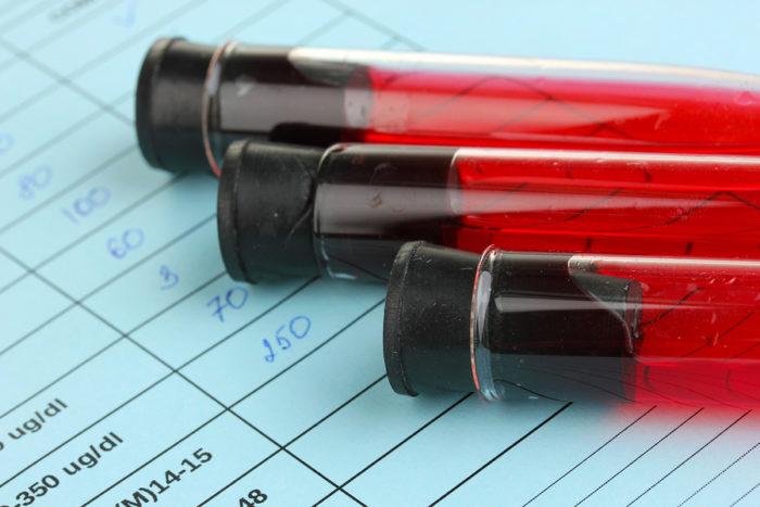 Kiedy ostatnio wykonywałeś badania krwi