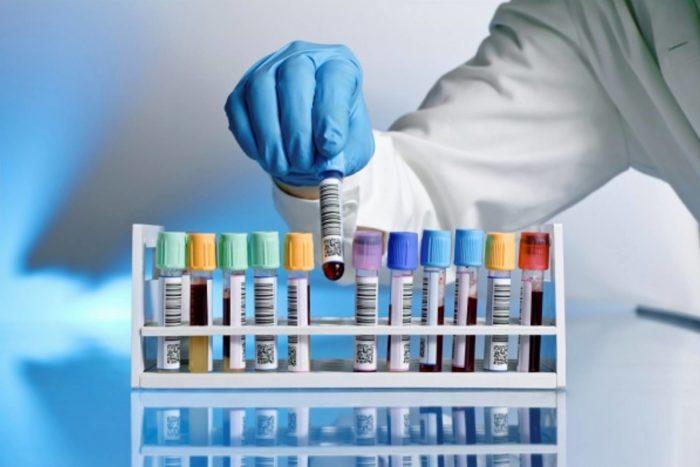 Cierpisz na nadwagę Nie zapomnij wykonać tych badań laboratoryjnych